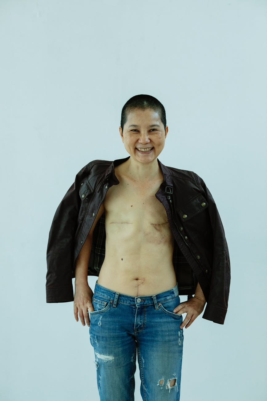 happy asian woman with scars after breast removal